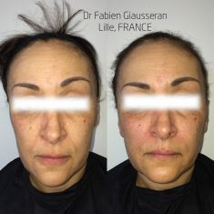 Lifting non chirurgical (Liquid facelift) - Cliché avant - Dr Fabien Giausseran