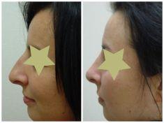 Korekcja nosa (Operacja nosa) - Zdjęcie przed - dr n. med. Tomasz Dębski