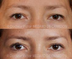 Blépharoplastie - Cliché avant - Docteur Victor Medard de Chardon