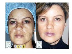 Fotoodmładzanie / odmładzanie skóry - Zdjęcie przed - Dr n. med. Agnieszka Wąsik-Kuprianowicz