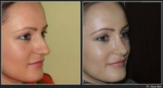 Dr. Lucian Fodor PhD - Female Rhinoplasty/Septoplasty Case 3 Photo 1