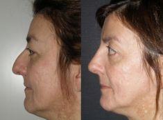Rhinoplasty (Nose Job) - Photo before - Dott. Enrico Robotti