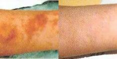 Odstranění pigmentových skvrn - fotka před