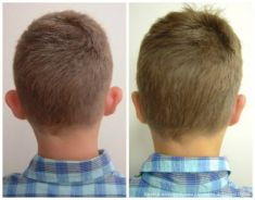 Korekcja uszu (Otoplastyka) - Zdjęcie przed - dr n. med. Tomasz Dębski