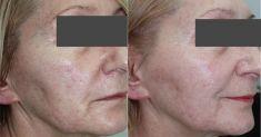 Laser frakcyjny/Fraxel (usuwanie przebarwień, zmian potrądzikowych, odmładzanie skóry) - Zdjęcie przed
