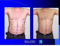 Liposucción - Foto Antes de - Dr. Luis Pavajeau Muñoz