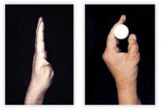 Wady wrodzone dłoni i rąk - Zdjęcie przed