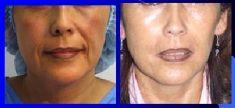 Lipotransferencia de grasa (lipofiling) - Foto Antes de - Dr. Luis Pavajeau Muñoz