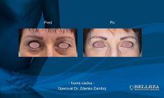 Operácia očných viečok (Blepharoplastika) - Fotka pred - MUDr. Zdenko Zamboj