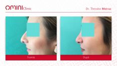 Dr. Theodor Motruc - Varsta / age : 28 Control la 1 an / 1 year after rhinoplasty surgery