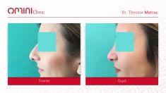 Rhinoplasty (Nose Job) - Varsta / age : 28 Control la 1 an / 1 year after rhinoplasty surgery