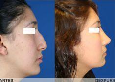 Cirugía de la nariz (Rinoplastia) - Foto Antes de - Dr. Carlos Eduardo Lloreda Ramirez