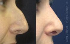 Plastika nosu (Rhinoplastika) - fotka před - MUDr. Roman Kufa - Perfect Clinic