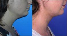 Liposuction - Photo before - Dr Alexandre Mertens