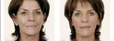 Kwas hialuronowy: Saypha, Restylane, Juvederm, Stylage - Zdjęcie przed - Dr Szczyt Klinika Chirurgii Plastycznej