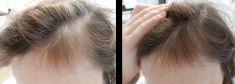 Léčba vypadávání vlasů pomocí plazmaterapie - fotka před