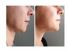 Come eliminare il doppio mento - Foto del prima - Dott. Luca Leva Chirurgo Plastico