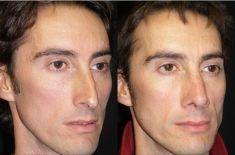 Dott. Enrico Robotti - Nei trequarti, sono evidentemente migliorate le proporzioni tra radice, dorso e punta. La radice è riempita, il dorso abbassato, e la punta sostenuta.