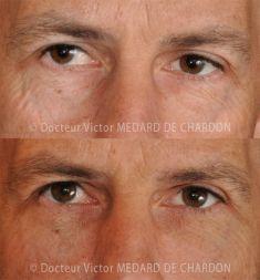 Lipofilling ou autogreffe de tissu graisseux - Cliché avant - Docteur Victor Medard de Chardon