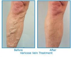 Varicose veins treatment - Photo before - Dr. Jain Best Cosmetic Surgery Clinic in UK