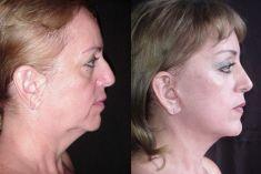Lifting facial APTOS - Foto Antes de - Dr. Boris Henríquez González