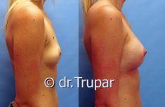 Zvětšení prsou (Augmentace) - fotka před - MUDr. Evžen Trupar Ph.D.