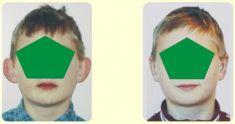 Korekcja uszu (Otoplastyka) - Zdjęcie przed - dr Bożena Jaklik