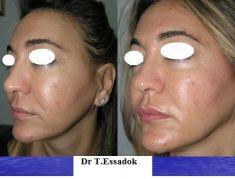 Injections de comblement - Cliché avant - Dr Tayeb Essadok