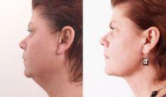 FORMOSITAS - Klinika estetické medicíny, s.r.o. - fotka před - FORMOSITAS - Klinika estetické medicíny, s.r.o.