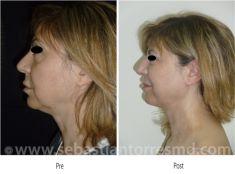 Come eliminare il doppio mento - Foto del prima - Dott. Sebastian Torres Farr