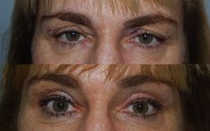Blefaroplastica - prima e dopo