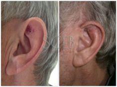 Operazione orecchie (Otoplastica) - Foto del prima - Dott. Manuel De Giovanni