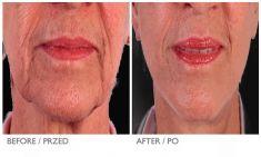 Facelift - Photo before - Mandala Beauty Clinic