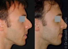 Rhinoplasty (Nose Job) - Photo before - Dr Gérald Franchi MD