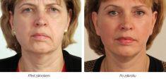 Facelift - 3D kanylové nitě - fotka před - Laserová dermatologická klinika ALTOS