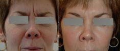 Botulinum toxin - Wrinkle Removal - Photo before - Dr Jacques Buis