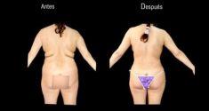 Liposucción - Foto Antes de - Dr. Felipe Amaya