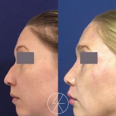 Rhinoplasty (Nose Job) - Photo before - MUDr. Lucie Kalinová PhD.