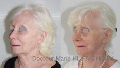 Dr Marie Klifa-Choisy - http://www.chirurgie-esthetique-nice.fr/chirurgie-esthetique/chirurgie-du-visage/liftings-du-visage/