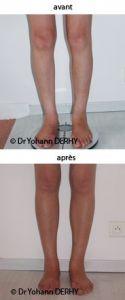 Chirurgie des fesses et des mollets - Cliché avant - Dr Yohann Derhy