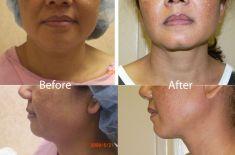 Liposuction - Photo before - Martin Jugenburg M.D.,FRCSC