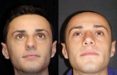 Rinoplastica - Nella visione dal basso, la particolare deformità delle cartilagini della punta è stata corretta.