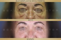 Dr. Javier Galindo-Ureña - Resultado tras blefaroplastia superior e inferior con mejoría significativa de las bolsas inferiores y resección de piel sobrante en párpado superior.