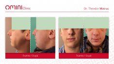 Rhinoplasty (Nose Job) - Varsta / age : 24 Control la 10 zile / 10 days after rhinoplasty surgery