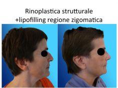 Rinoplastica - Foto del prima - Dr. Luigi Maria Lapalorcia Specialista in Chirurgia Plastica Ricostruttiva ed Estetica