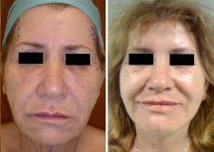 Lifting viso - Lifting facciale