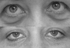 Eyelid surgery (Blepharoplasty) - Photo before - MUDr. Roman Kufa - Perfect Clinic