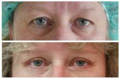 Operace očních víček (Blefaroplastika) - ŽENA, 52 LET, PLASTICKÁ OPERACE HORNÍCH A DOLNÍCH VÍČEK