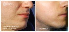 Laser Scar Treatment - Photo before - Mandala Beauty Clinic