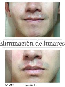 Revitalización de la cara - Foto Antes de - Dra Pamela Galarza